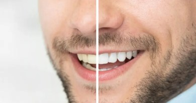 Dents tachées : Quelles solutions ?