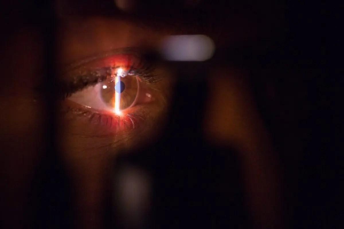 Chirurgie des yeux : Quels sont les défauts opérables ?