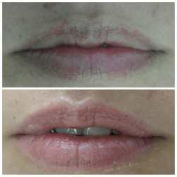 micropigmentacao de labios