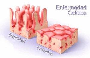 celiac daño