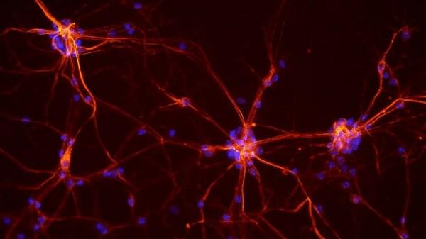 Neurônios da medula espinhal de um rato.