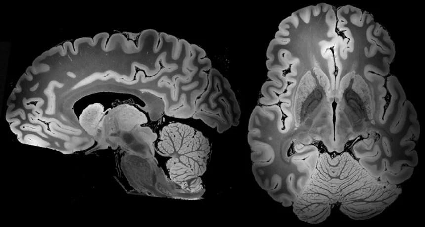 Cientistas produzem a imagem mais detalhada do cérebro humano já feita