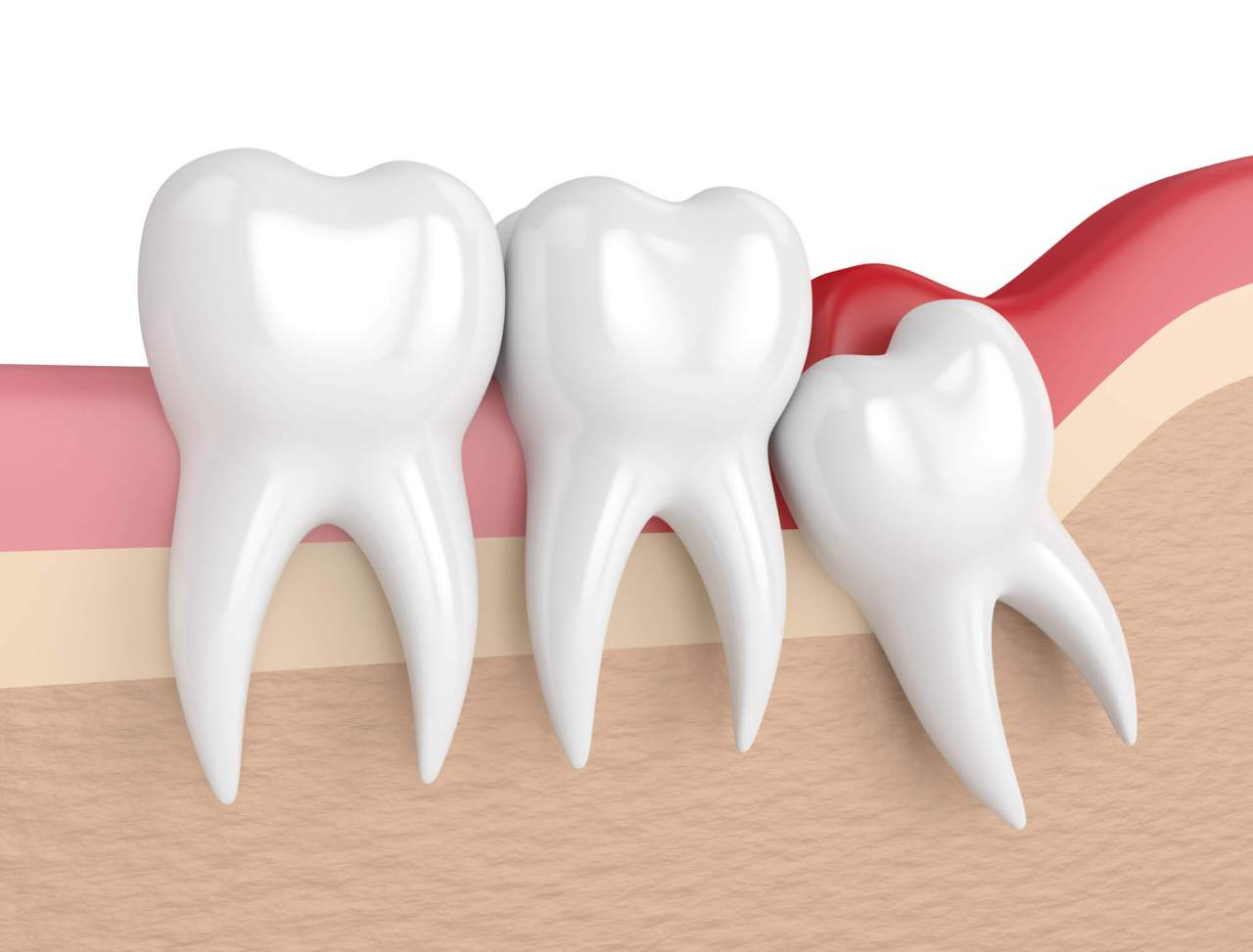 O dente do siso pode simplesmente não se encaixar juntos aos outros molares