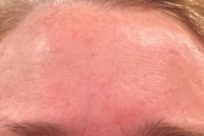 After Non-Ablative Laser