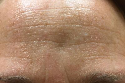 Before Non-Ablative Laser