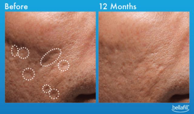 bellafill acne scar sofias med spa