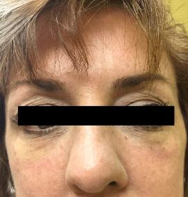 After Eye Rejuvenation