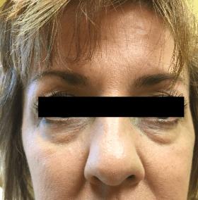 Before Eye Rejuvenation