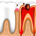 Пульпит: воспаление нерва и сильная зубная боль. Лечение в Перми круглосуточно