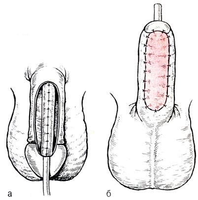 erekcija su hipospadijomis