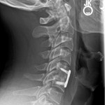 C5.6 post op lateral xray