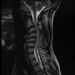 preop MRI multi-level cervical kyphosis