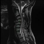 preop MRI multi-level cervical kyphosis