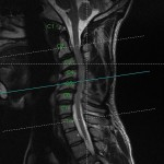 preop-MRI-multi-level-cervical-kyphosis-axial-reference