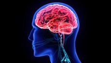 La protección cerebral en TAVI continúa con evidencia débil pero con esperanzas