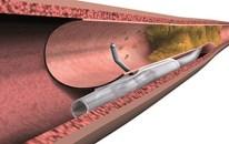 ¿En qué pacientes intentar la recanalización de una oclusión crónica total?