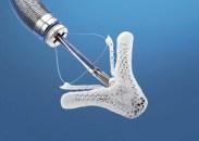 La reparación de la válvula mitral con Mitraclip es segura en pacientes de alto riesgo
