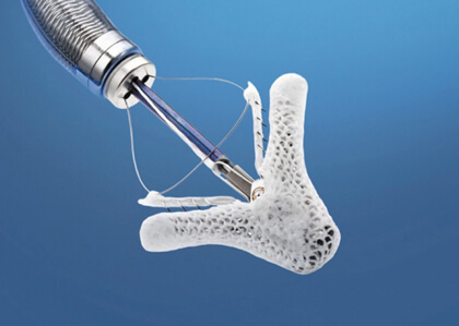 Mitral Valve Repair with MitraClip Is Safe in High-Risk Patients