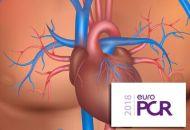 TAVI_estenosis-aortica-severa