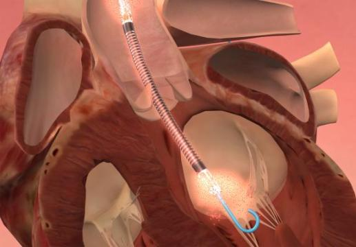 Impella: A Revolutionary Device Being Questioned