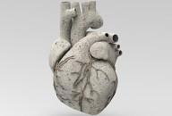 Dietas bajas en carbohidratos y progresión de la calcificación coronaria