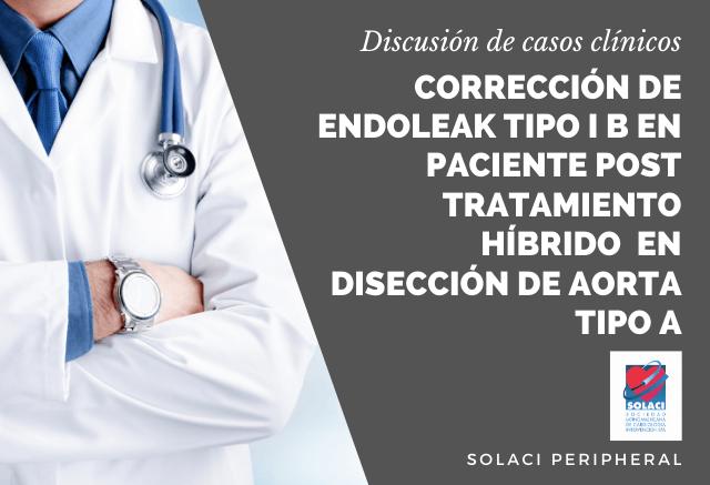 SOLACI PERIPHERAL | Corrección de Endoleak tipo I b en paciente post tratamiento híbrido mínimamente invasivo en disección de aorta tipo A