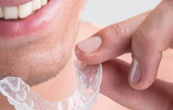 Invisalign: Making Self-Care a Priority