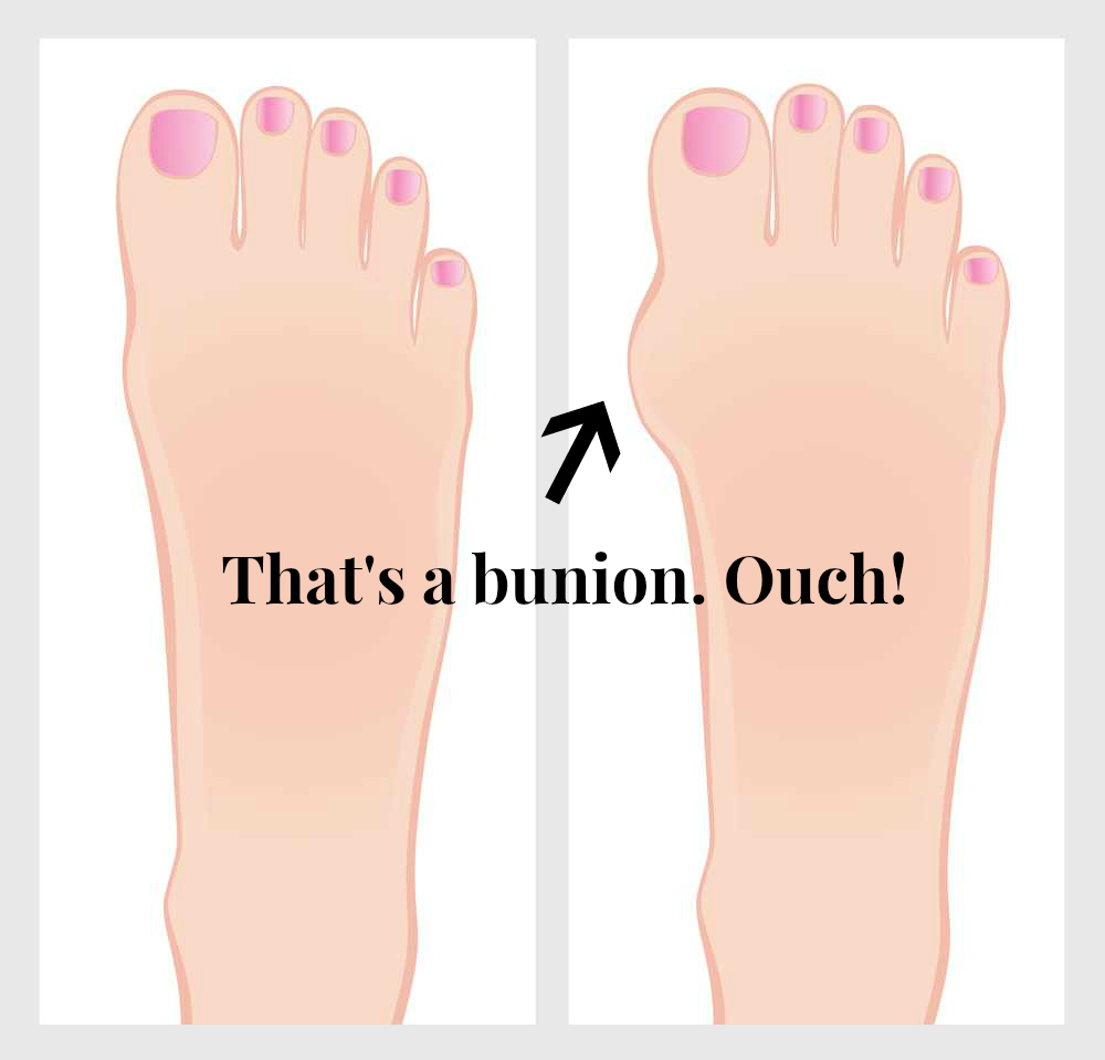 Shoes That Help Bunions