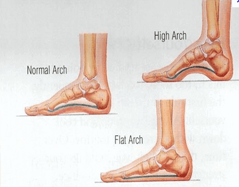 What are the different kinds of arch