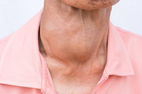 Poruchy štítnej žľazy vstarobe.