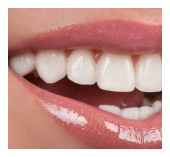 Dental-crowns-bridges-tijuana