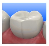 composite-fillings-tijuana