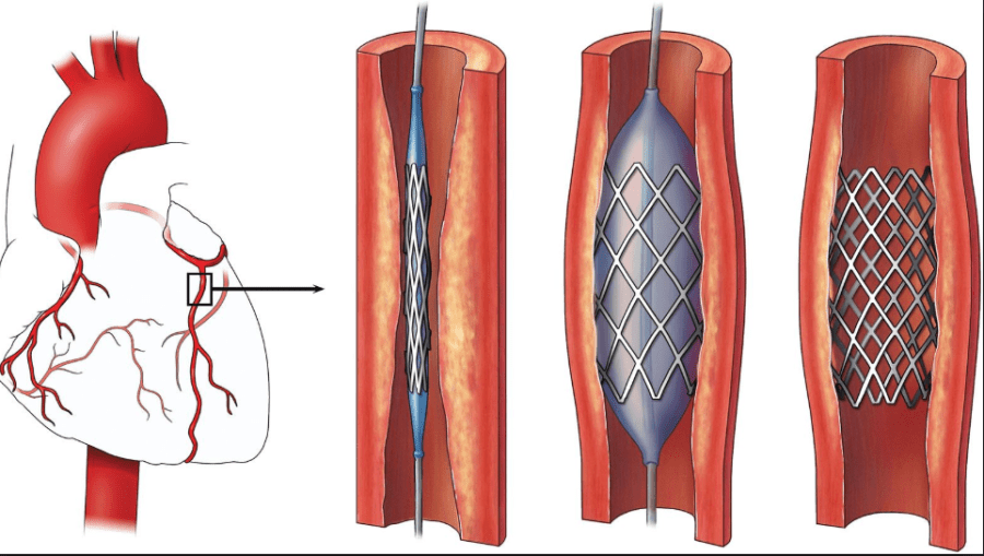How is Coronary Angioplasty done?