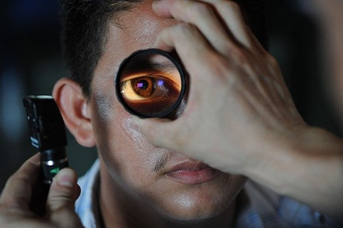 CATARACT SURGERY related risk and complications