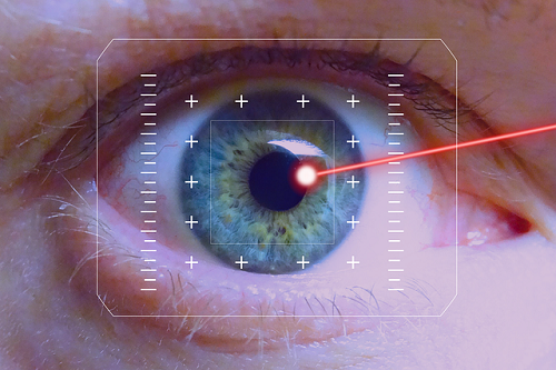Laesr procedures for eye diseases