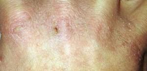 Photo of dry hand skin