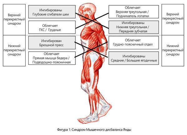 «Кресты» верхних и нижних перекрестных синдромов.