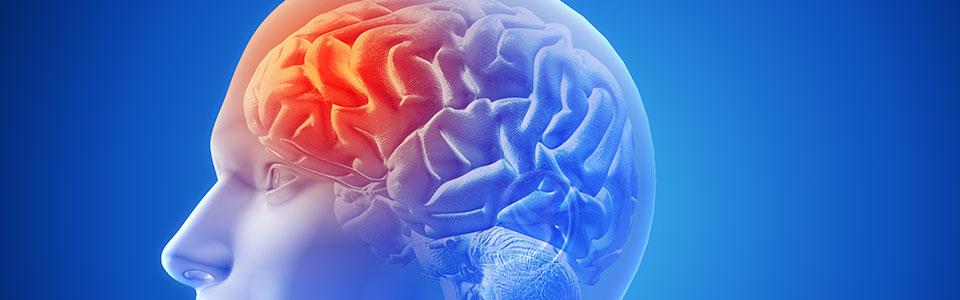 beyin mr çekimi nedir