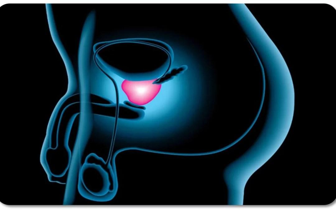 Prostata y Prostatitis