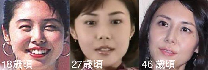 松嶋菜々子の整形検証比較画像01