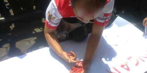 Ketua Umum LSM PMPRI, Rohimat Joker, menuliskan sesuatu diatas selembar karton putih menggunakan darah yang mengucur dari kepalanya