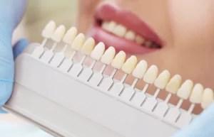 escala de cores para clareamento dental