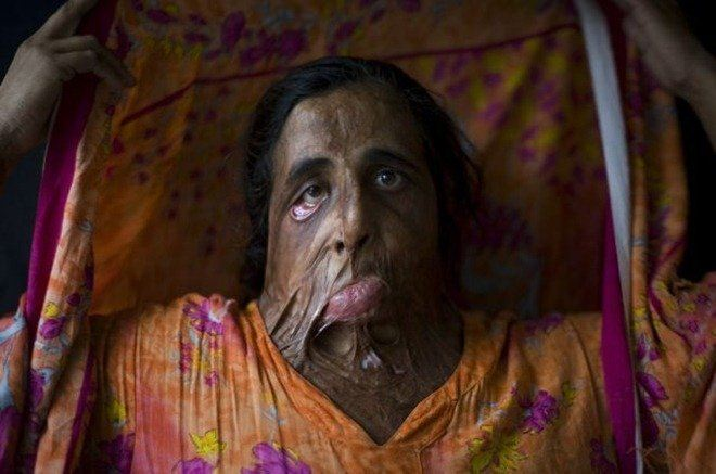 Bildet hentet fra ryot.org