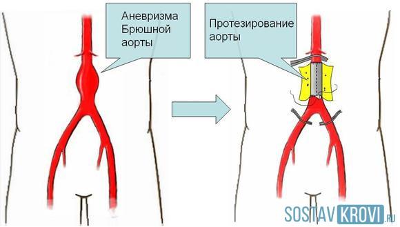 Сердце расширено влево аорта уплотнена