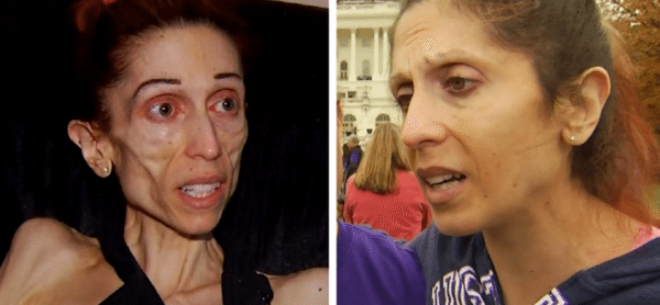 40-Pound Anorexic Woman Who Begged for Help Has Made a Stunning Recovery