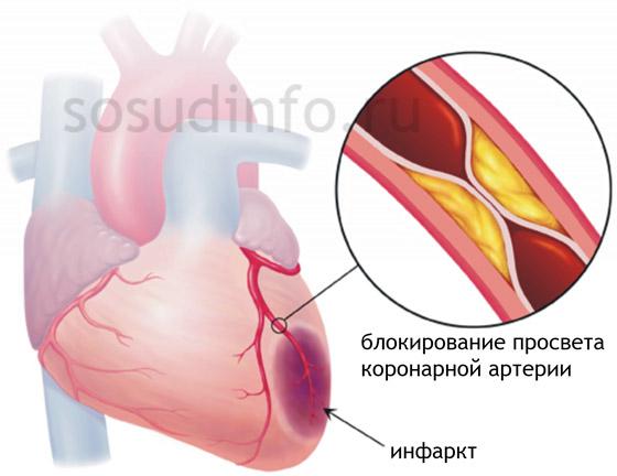 Самая частая причина смерти при остром инфаркте миокарда