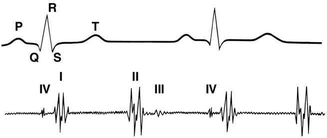 hipertenzija ir izoprinosinas su hipertenzijos galvos skausmu