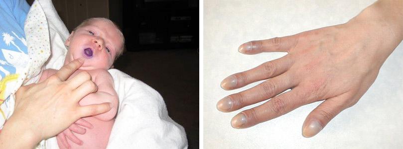 Umflarea articulației 3 degete. Ce este artroza? | Cauze si remedii – Voltaren