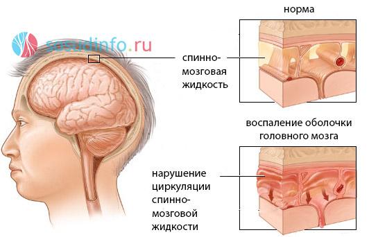 Арахноидит причины, симптомы, лечение