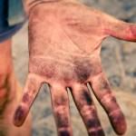 【ボルダリング】指の付け根にホールドが当たると痛い件について